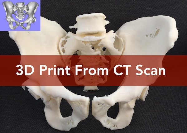 3 Piece Print of CT Scan Trial